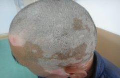 男性头部白癜风怎么护理