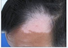 女性头部白癜风的原因有哪些