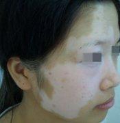 脸上的白斑需要多久治好